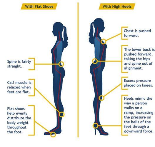 how-high-heels-hurt-your-body The scienec of high heels